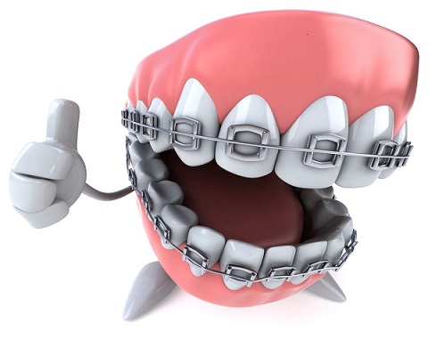 Când ai nevoie de un aparat dentar și ce ar trebui să știi despre acesta?